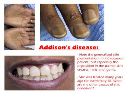 A Brief Introduction to Addisons Disease of appetite and