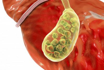 Gallbladder Location and Complications the surgeon you have will