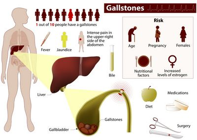 Gallbladder Location and Complications chills, shortness of breath, fainting
