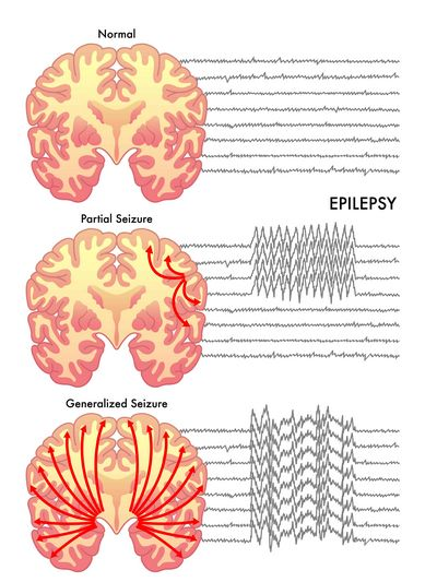What Is Epilepsy? be caused